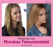 Милана Тюльпанова до и после ринопластики