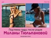 Милана Тюльпанова до и после подтяжки груди