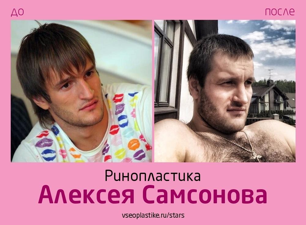 Алексей Самсонов до и после риносептопластики