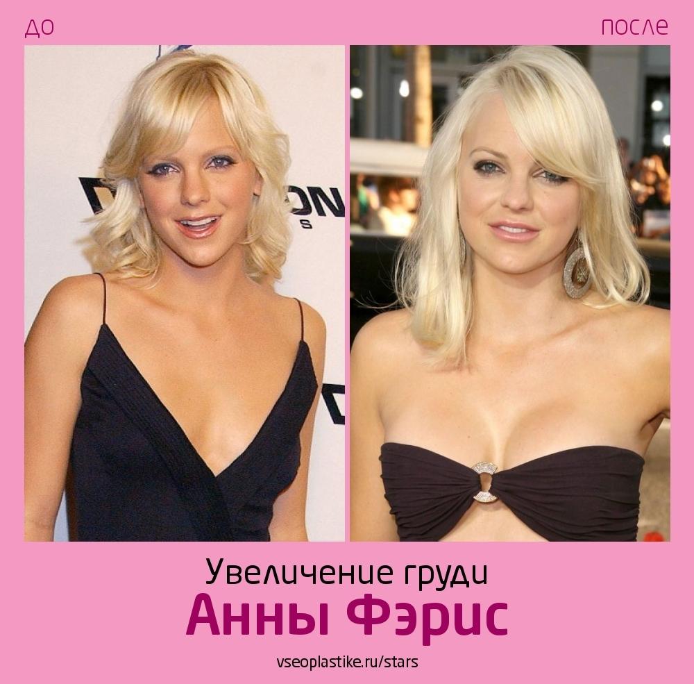 Анна Фэрис до и после увеличения груди