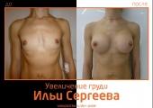 Фото до и после увеличения очень маленькой груди у доктора Ильи Сергеева.