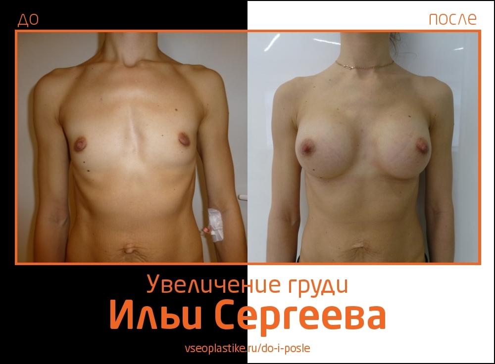 Фото до и после увеличения груди у доктора Ильи Сергеева