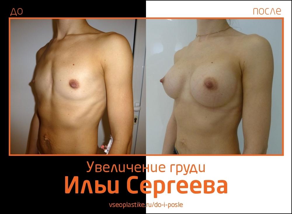 Фото до и после увеличения молочных желез у доктора Ильи Сергеева