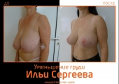 Илья Сергеев.  Фото до и после уменьшения и подтяжки груди