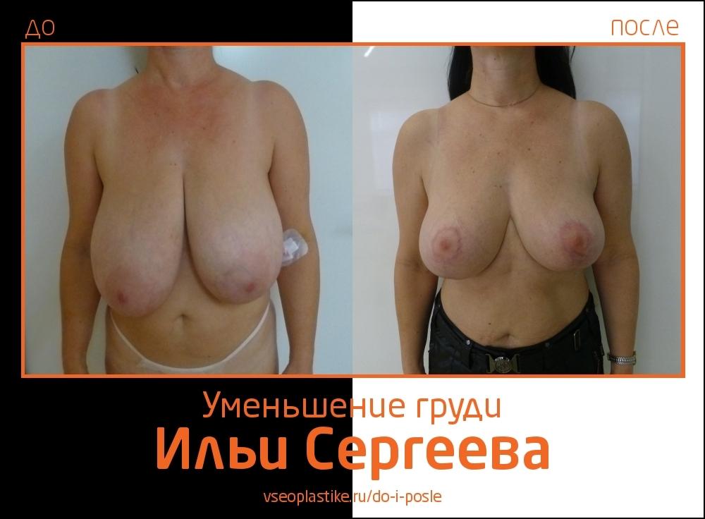 Илья Сергеев.  Фото до и после редукции и подтяжки груди