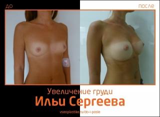 Фото до и после увеличения груди у Ильи Сергеева