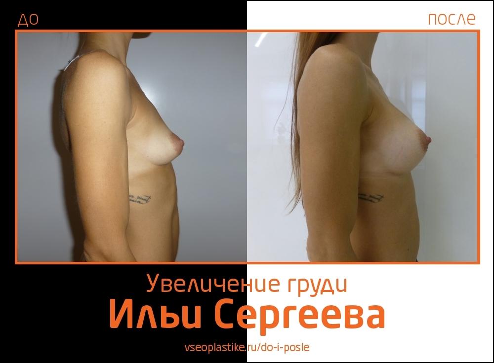 Илья Сергеев.  Фото до и после увеличения груди