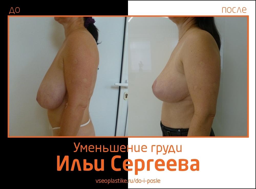 Илья Сергеев.  Фото до и после уменьшения груди и мастопексии