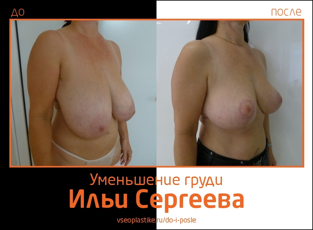 Фото до и после уменьшения и подтяжки груди у доктора Ильи Сергеева