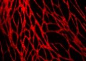 Впервые ученые напечатали человеческую кожу с сосудами