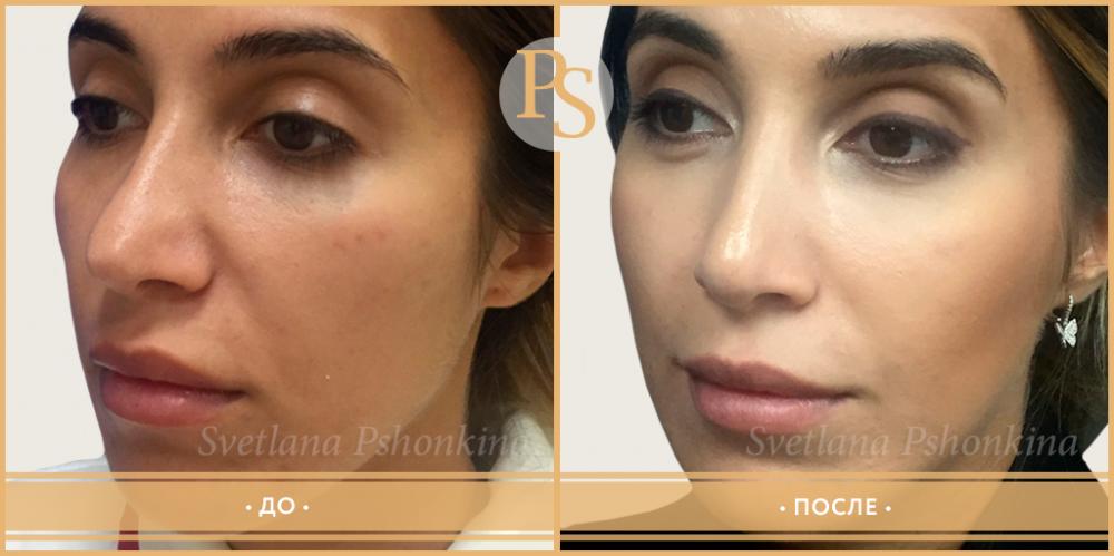 Фото до и после повторной ринопластики у доктора Светланы Пшонкиной