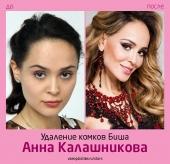 Анна Калашникова до и после удаления комков Биша