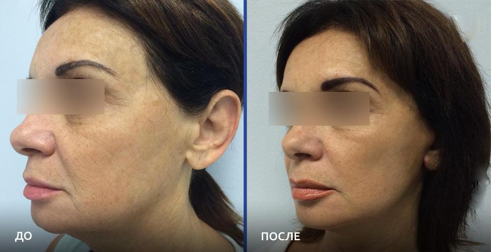 Фото до и после омоложения у пластического хирурга Алексея Гварамии