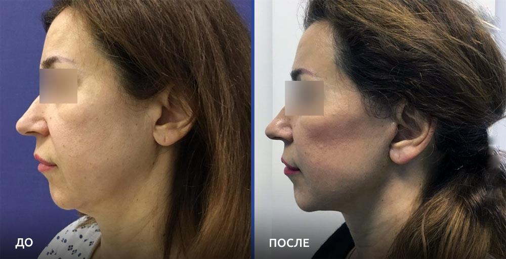 Фото до и после омоложения у доктора Алексея Гварамии