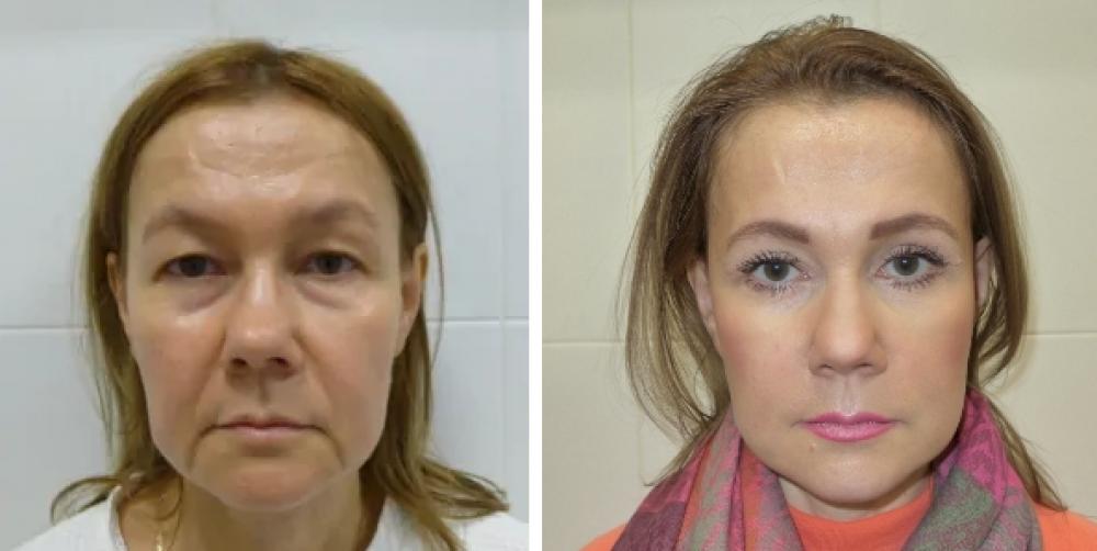 Пациентка до и после операции у доктора Михайлова