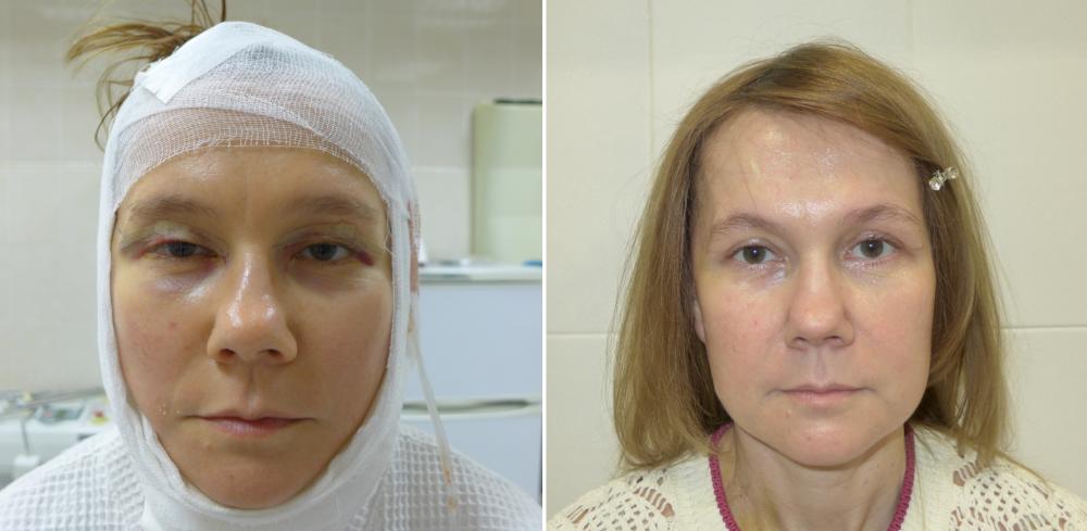 Пациентка через сутки и 3 недели после операции