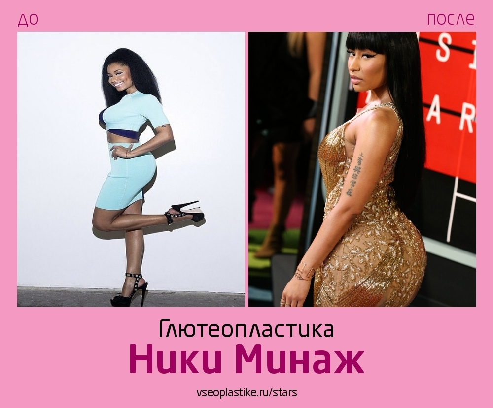 Ники Минаж до и после увеличения ягодиц