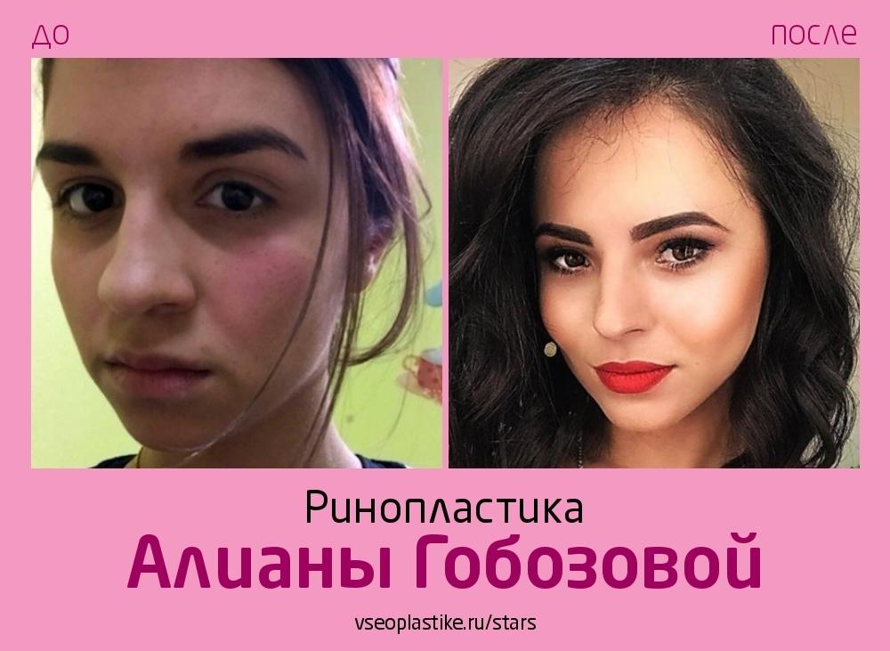 Алиана Гобозова до и после риносептопластики