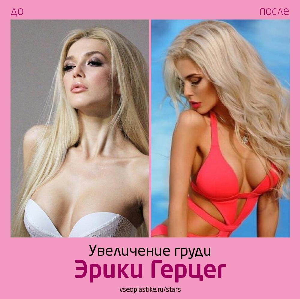 Эрика Герцег до и после увеличения груди