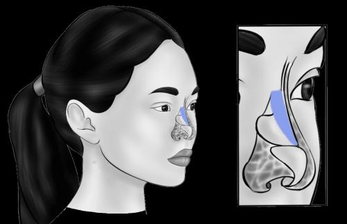 Носовые импланты