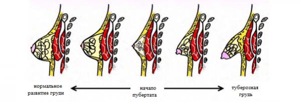 Нормальное и аномальное развитие груди