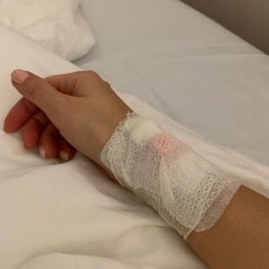 Лера Кудрявцева удалила импланты