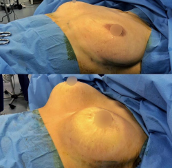 Подтяжка и увеличение груди у доктора Куприна