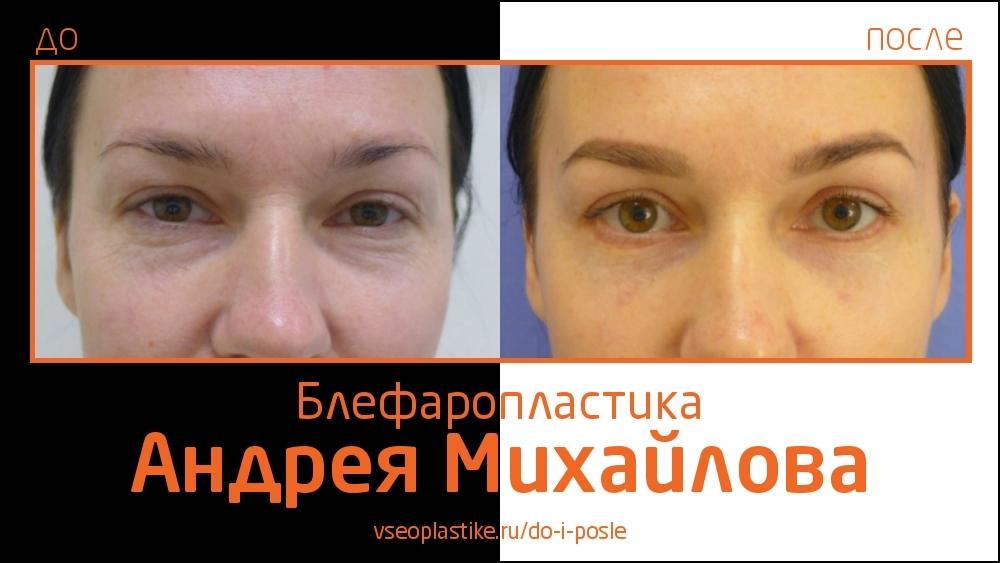 Андрей Михайлов. До и после блефаропластики
