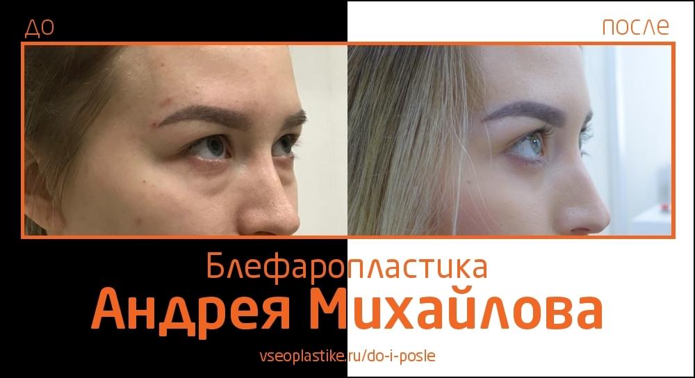 Пластический хирург Андрей Михайлов. Фото до и после блефаропластики