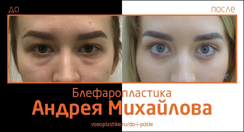 Пластический хирург Андрей Михайлов. До и после блефаропластики