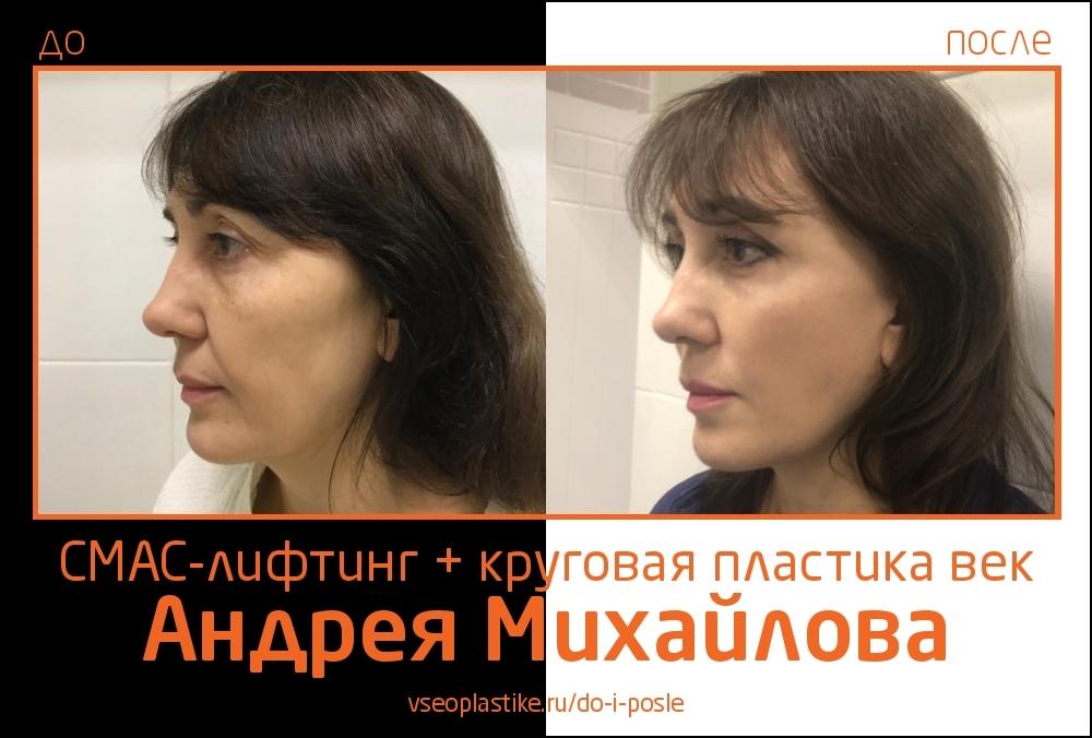 Доктор Андрей Михайлов. Фото до и после СМАС-лифтинга и круговой блефаропластики