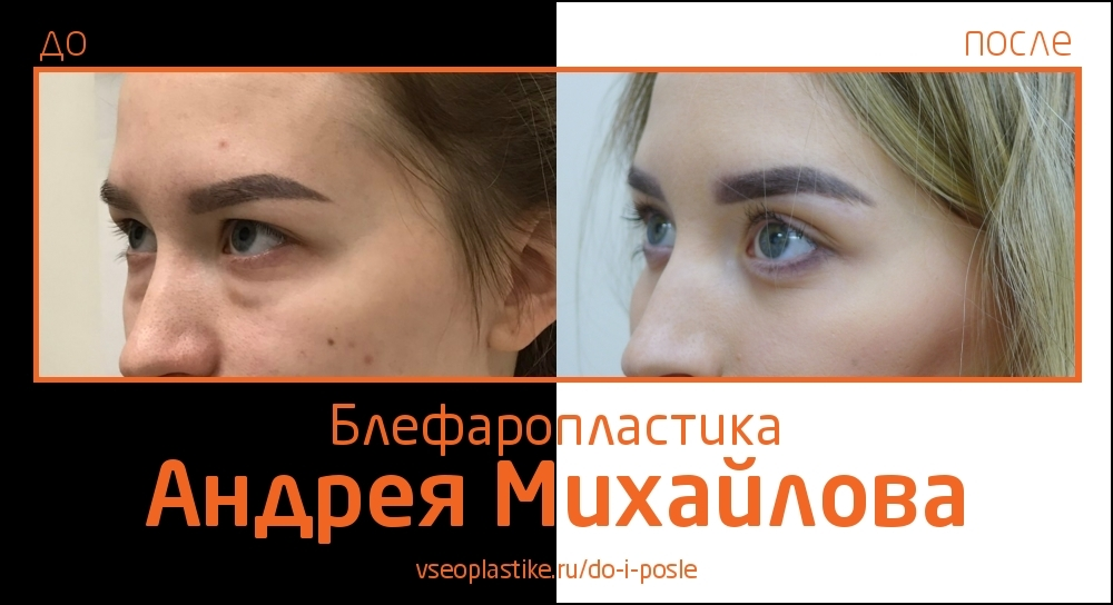 Пластический хирург Андрей Михайлов. Снимки до и после блефаропластики