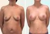 Фото пациентки до и после пластики груди у доктора Дмитрия Рябцева