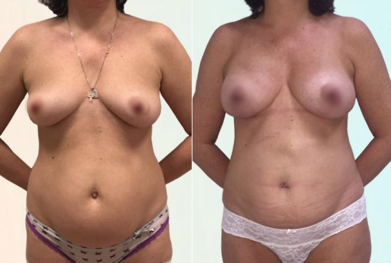 Фото пациентки до и после маммопластики у доктора Рябцева