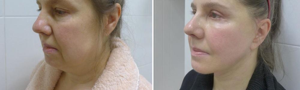 1,5 месяца после Смас подтяжка лица, подтяжка и липосакция шеи, липомоделирование подбородочной области, круговая блефаропластика