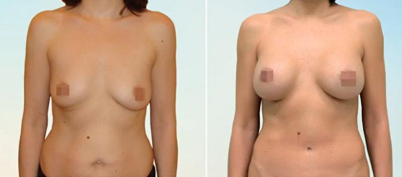 Фото пациентки до и после пластики груди у доктора Рябцева