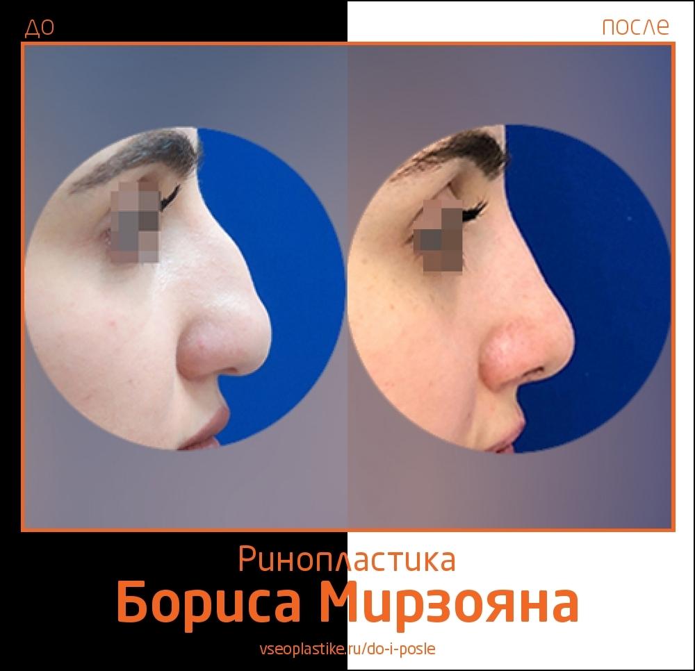 Борис Мирзоян. Фото пациентки до и после ринопластики