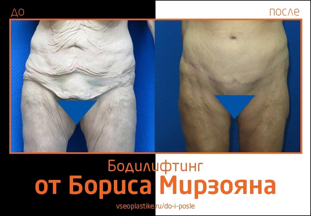 Борис Мирзоян. Фото до и после круговой подтяжки кожи тела