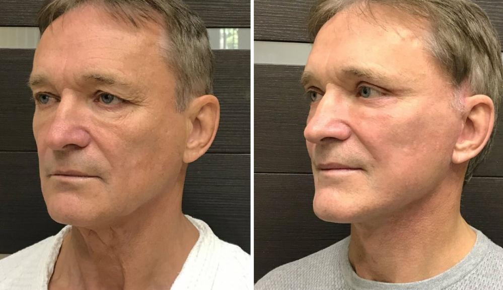 Фото пациента до и после фейслифтинга у доктора Ольги Ованесовой