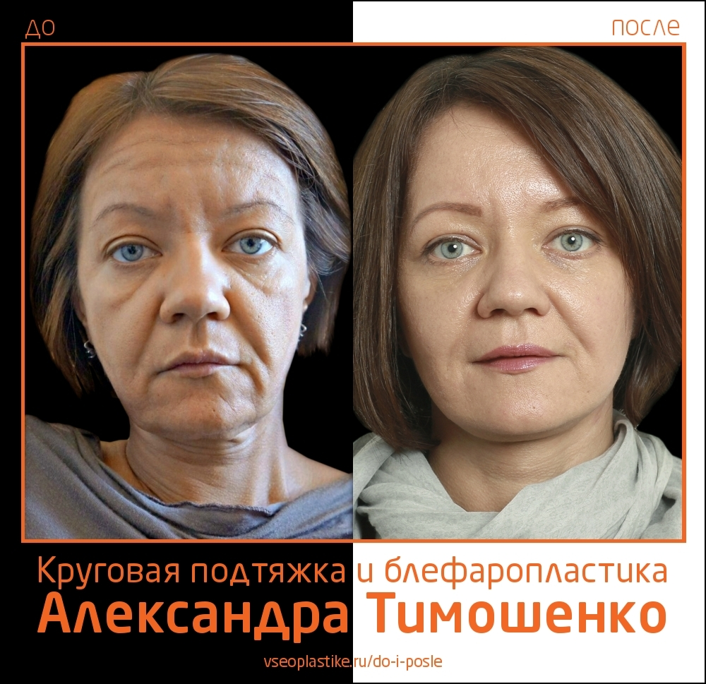 Александр Тимошенко. Фото пациентки до и после круговой подтяжки лица и пластики век