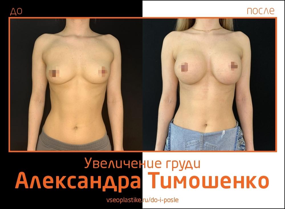 Доктор Александр Тимошенко. Фото пациентки до и после увеличения груди