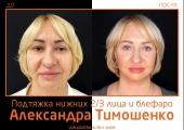 Александр Тимошенко. Фото до и после подтяжки лица и круговой блефаропластики