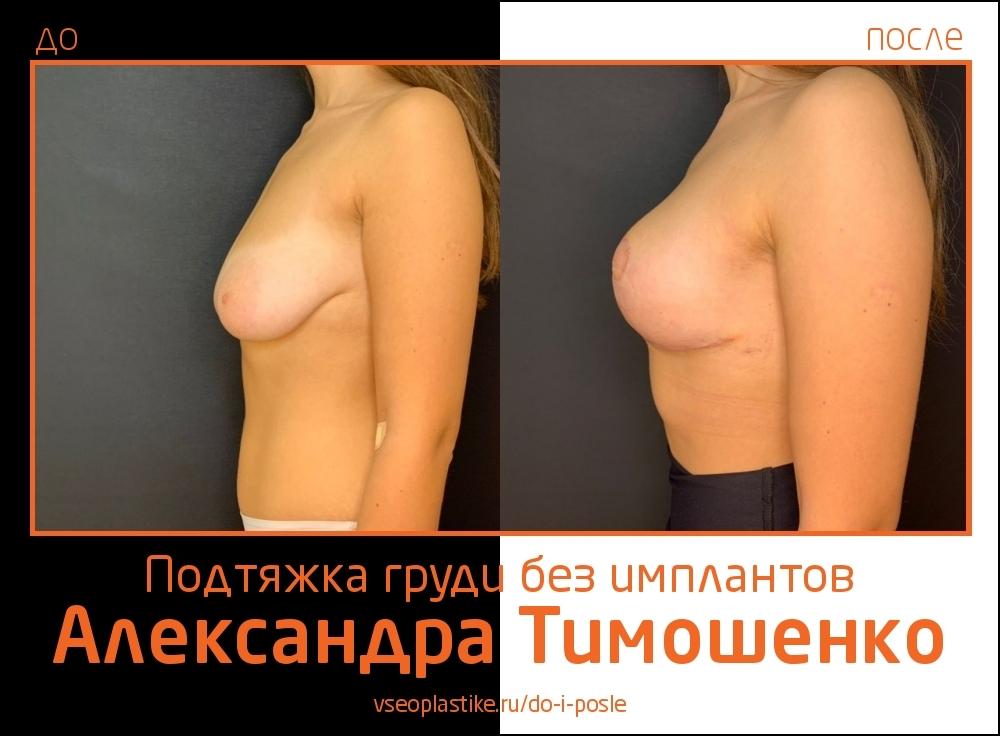 Доктор Александр Тимошенко. Фото пациентки до и после подтяжки груди без имплантов