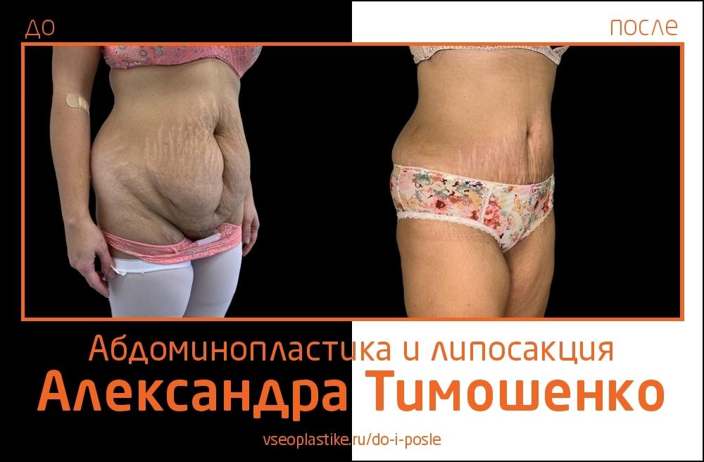 Пластический хирург Александр Тимошенко. Снимки до и после абдоминопластики и липосакции