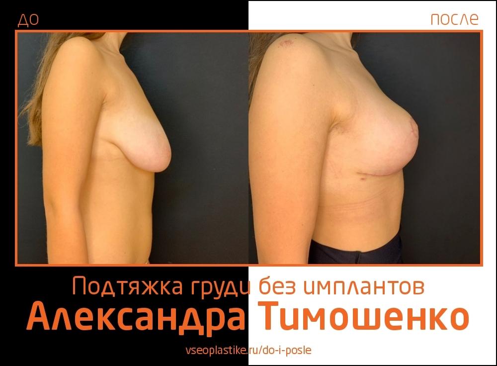 Доктор Александр Тимошенко. Фото до и после подтяжки груди без имплантов