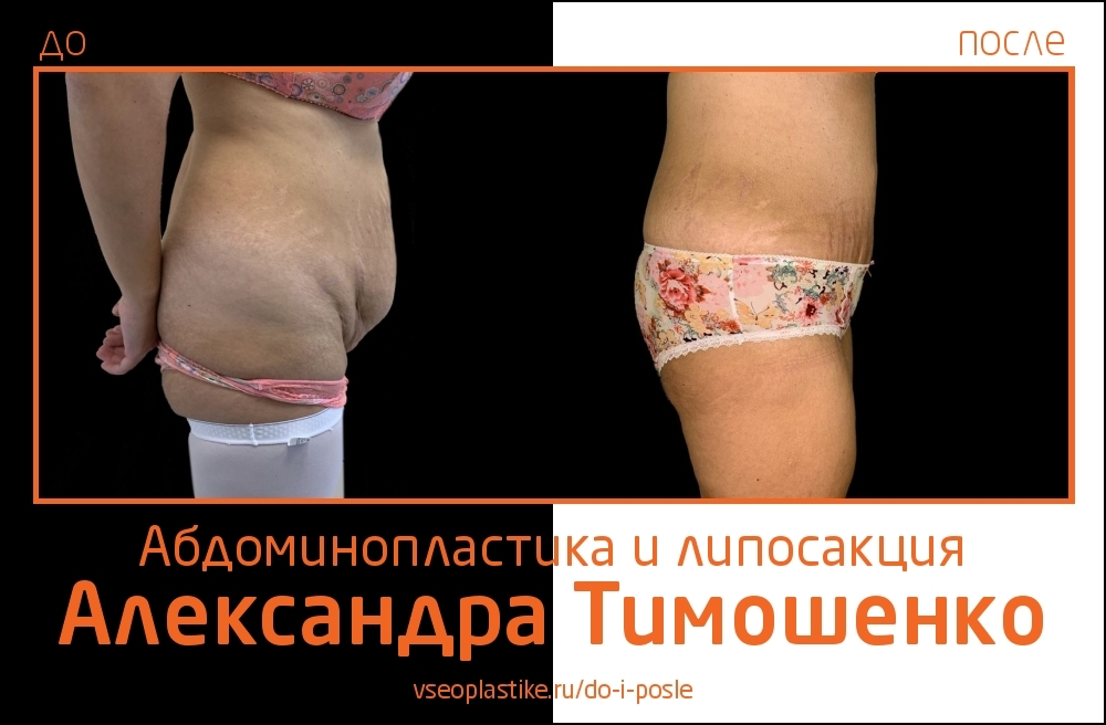 Доктор Александр Тимошенко. Фото до и после абдоминопластики и липосакции