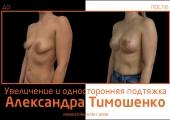 Пластический хирург Александр Тимошенко. Фото пациентки до и после увеличения и односторонней подтяжки груди