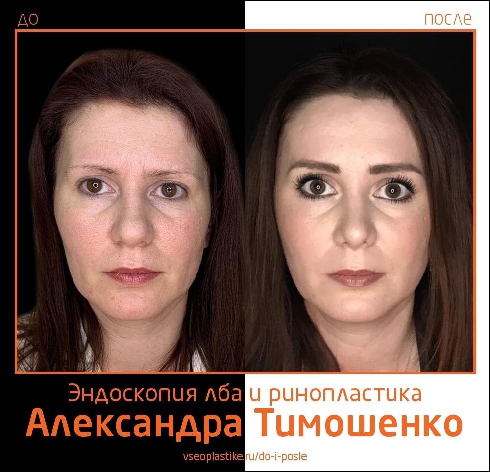 Пластический хирург Александр Тимошенко. Фото до и после эндоскопической подтяжки лба и ринопластики
