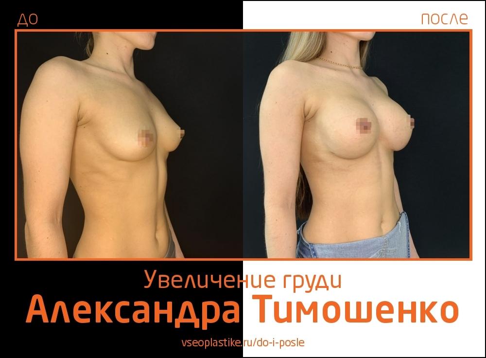 Александр Тимошенко. Фото пациентки до и после увеличения груди