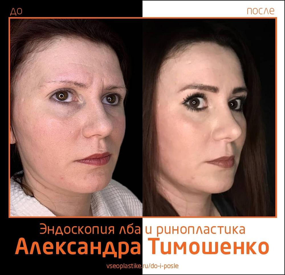 Александр Тимошенко. Фото пациентки до и после эндоскопической подтяжки лба и ринопластики